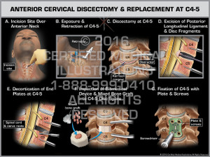 Exhibit of Anterior Cervical Discectomy & Replacement at C4-5