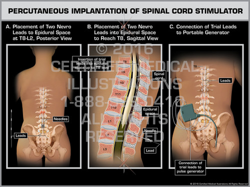 Exhibit of Percutaneous Implantation of Spinal Cord Stimulator - Print Quality Instant Download