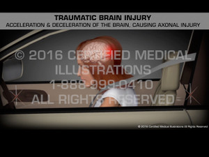 Animation of Traumatic Brain Injury - Medical Animation