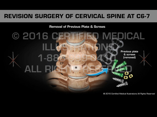 Animation of Revision Surgery of Cervical Spine at C6-7 - Medical Animation