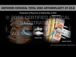 Animation of Anterior Cervical Total Disc Arthroplasty at C5-6 - Medical Animation