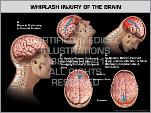 Exhibit of Whiplash Injury of the Brain - Print Quality Instant Download