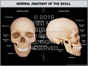 Exhibit of Normal Anatomy of the Skull