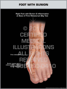 Exhibit of Foot with Bunion - Print Quality Instant Download