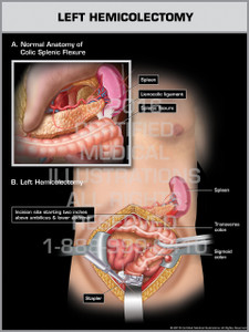 Exhibit of Left Hemicolectomy - Print Quality Instant Download