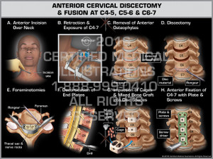 Exhibit of Anterior Cervical Discectomy & Fusion at C4-5, C5-6 & C6-7 - Print Quality Instant Download