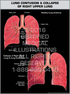 Exhibit of Lung Contusion & Collapse of Right Upper Lung - Print Quality Instant Download