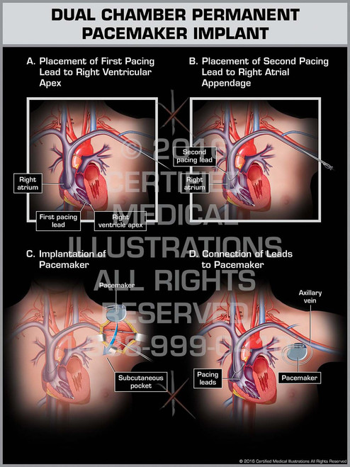 Exhibit of Dual Chamber Permanent Pacemaker Implant - Print Quality Instant Download