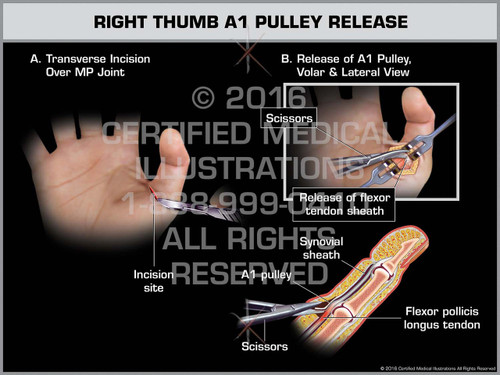 Exhibit of Right Thumb A1 Pulley Release