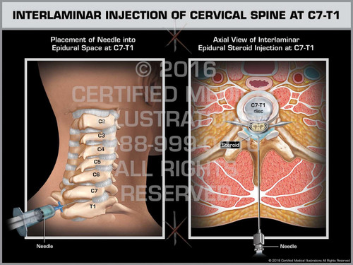 Exhibit of Interlaminar Injection of Cervical Spine at C7-T1 - Print Quality Instant Download