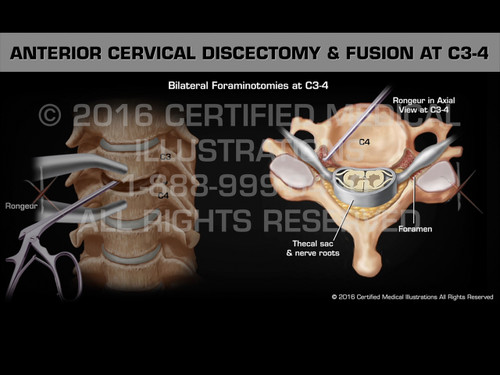 Animation of Anterior Cervical Discectomy & Fusion at C3-4