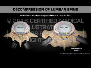 Animation of Decompression of Lumbar Spine