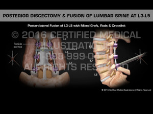 Animation of Posterior Discectomy & Fusion of Lumbar Spine at L3-L5