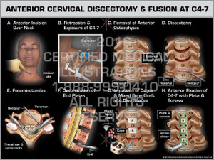 Exhibit of Anterior Cervical Discectomy & Fusion at C4-7 - Print Quality Instant Download
