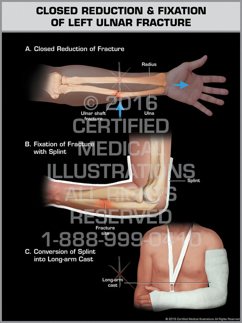 Exhibit of Closed Reduction & Fixation of Left Ulnar Fracture - Print Quality Instant Download