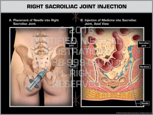 Exhibit of Right Sacroiliac Joint Injection - Print Quality Instant Download