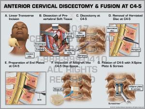 Exhibit of Anterior Cervical Discectomy & Fusion at C4-5
