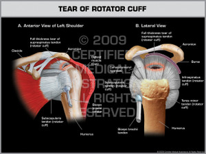 Exhibit of Tear of Rotator Cuff - Left.