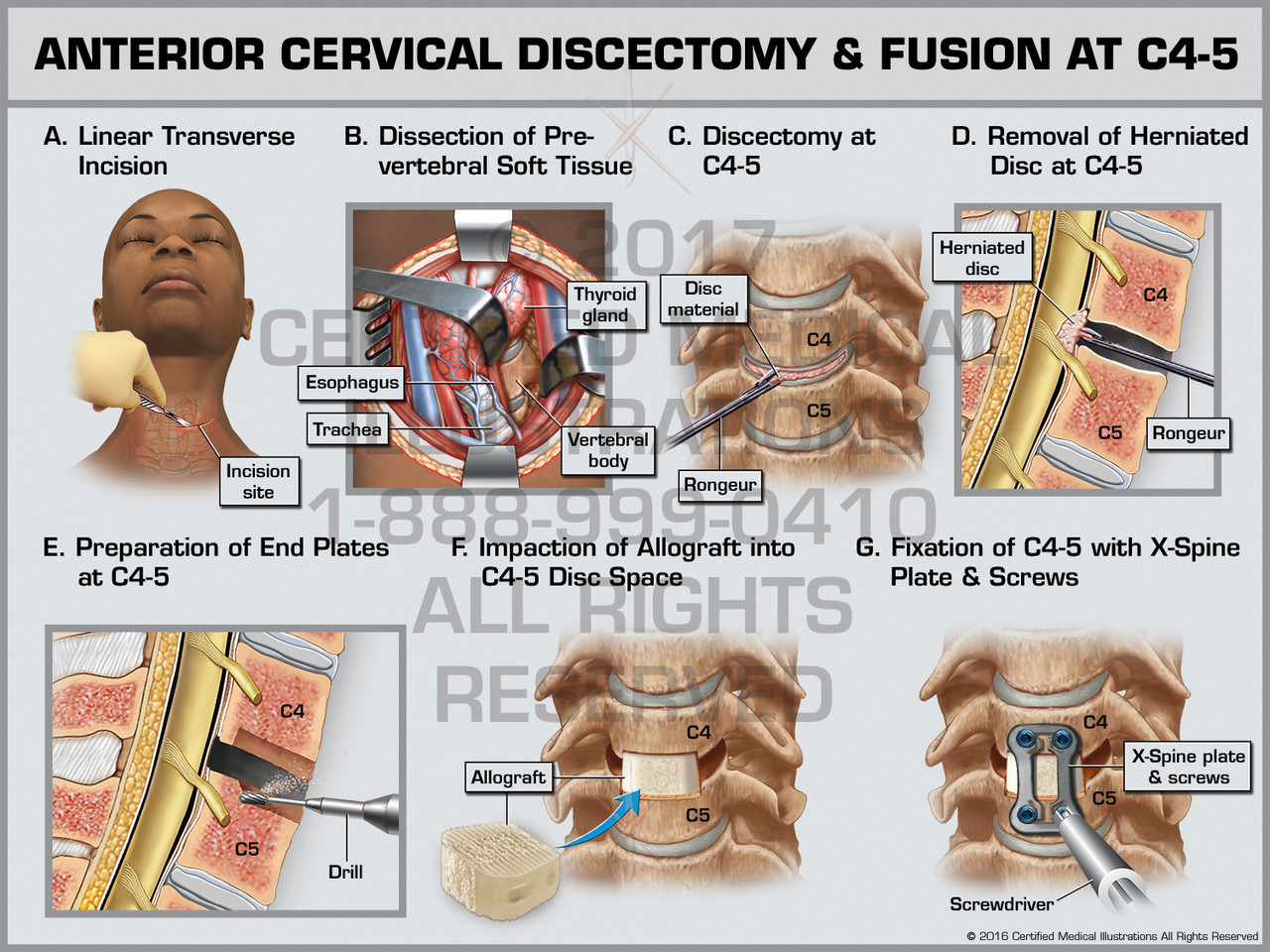 Anterior Cervical Discectomy & Fusion at C4-5 - Print Quality Instant  Download