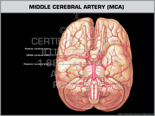 Exhibit of Middle Cerebral Artery (MCA)