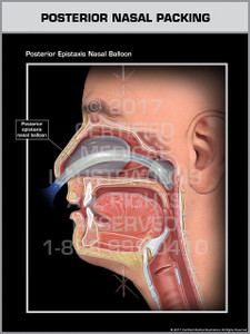 Posterior Nasal Packing- Print Quality Instant Download