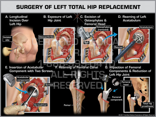 Surgery of Left Total Hip Replacement