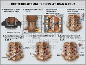 Posterolateral Fusion at C5-6 & C6-7