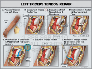Exhibit of Left Triceps Tendon Repair - Print Quality Instant Download