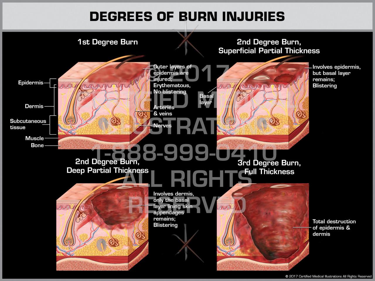 Degrees of Burn Injuries