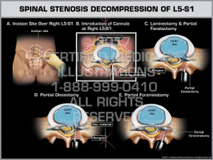 Exhibit of Spinal Stenosis Decompression of L5-S1 - Print Quality Instant Download