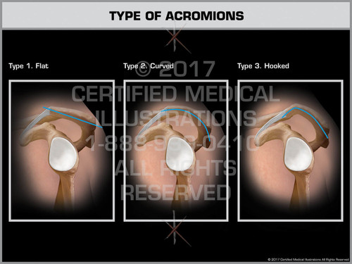 Exhibit of Type of Acromions