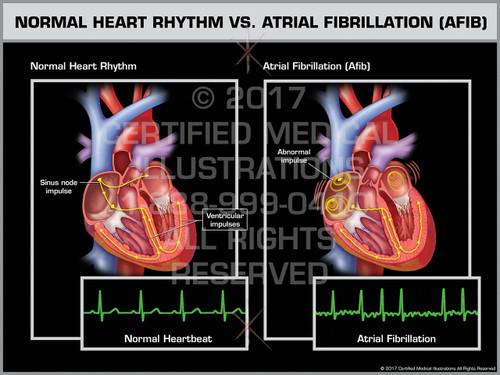 Exhibit of Normal Heart Rhythm vs. Atrial Fibrillation (AFIB)