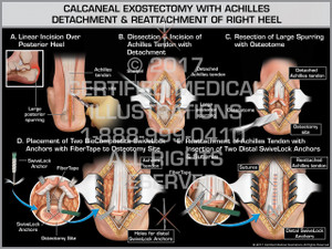 Calcaneal Exostectomy with Achilles Detachment & Reattachment of Right Heel