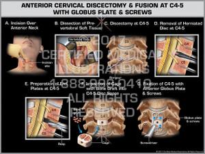 Exhibit of Anterior Cervical Discectomy & Fusion at C4-5 with Globus Plate & Screws
