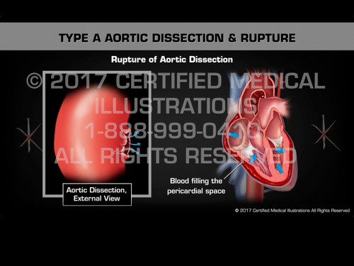 Animation of Type A Aortic Dissection & Rupture