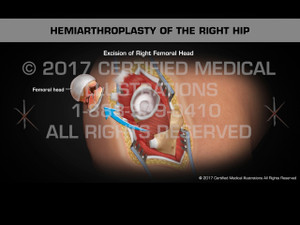 Animation of Hemiarthroplasty of the Right Hip