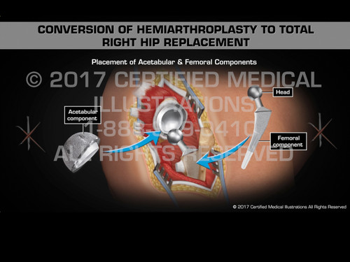 Animation of Conversion of Hemiarthroplasty to Total Right Hip Replacement