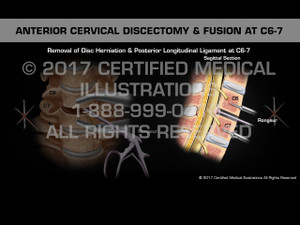 Animation of Anterior Cervical Discectomy & Fusion at C6-7 - Female