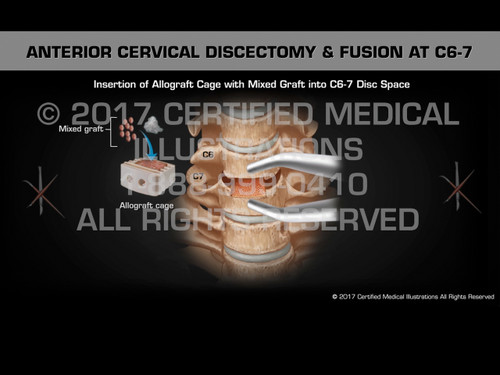 Animation of Anterior Discectomy & Fusion at C6-7