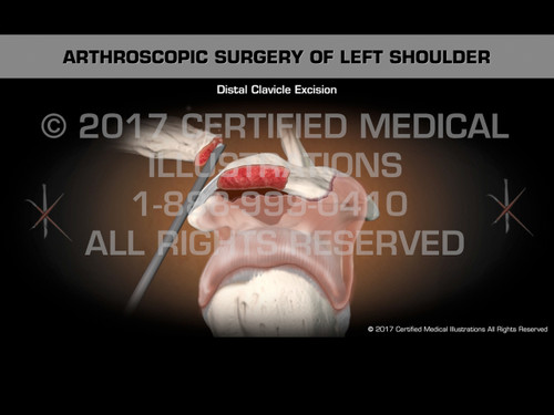Animation of Arthroscopic Surgery of Left Shoulder