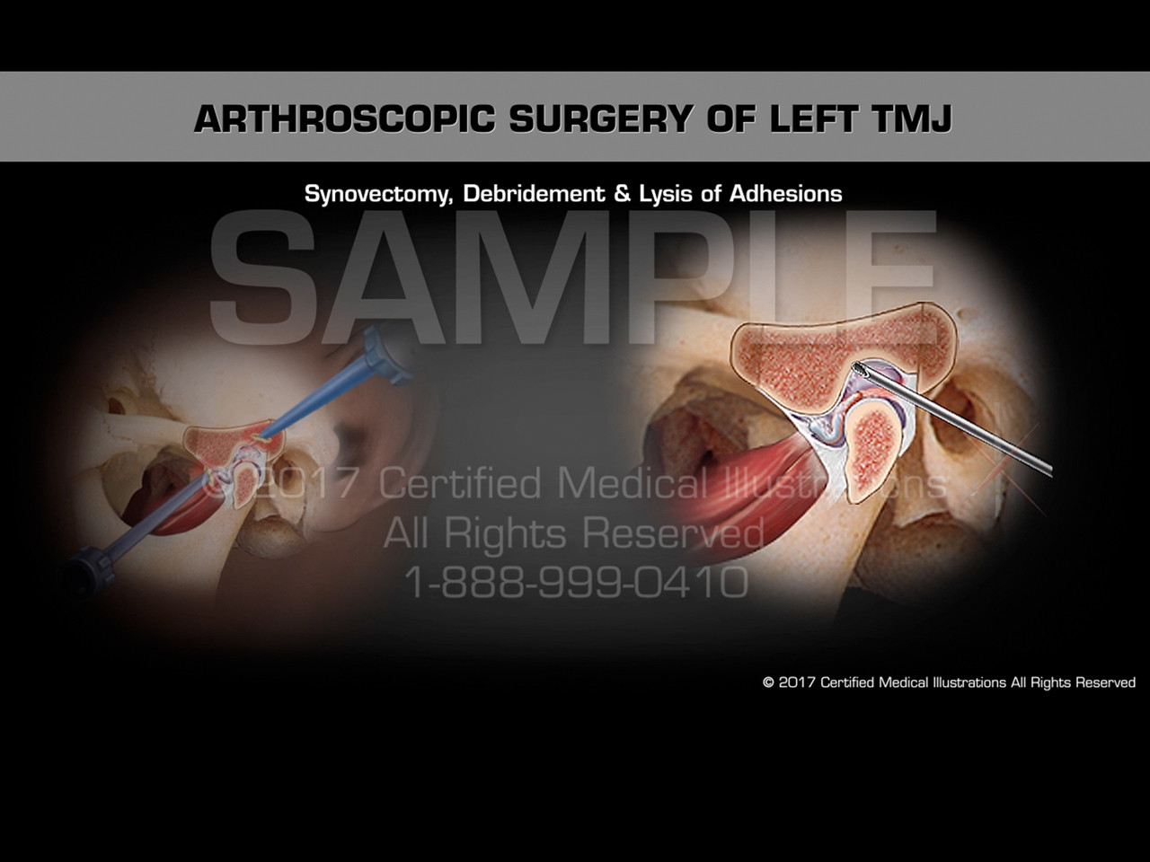 Arthroscopic Surgery Of Left Tmj Medical Animation