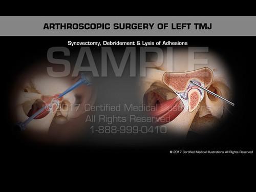 Arthroscopic Surgery of Left TMJ