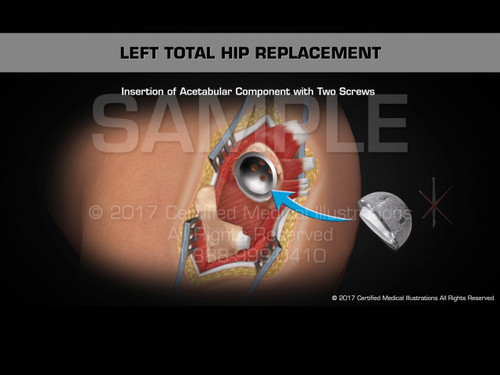 Left Total Hip Replacement Animation