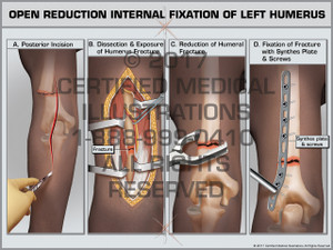 Open Reduction Internal Fixation of Left Humerus