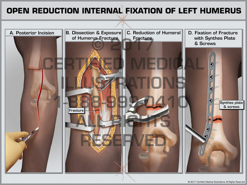 Open Reduction Internal Fixation of Left Humerus- Print Quality Instant Download