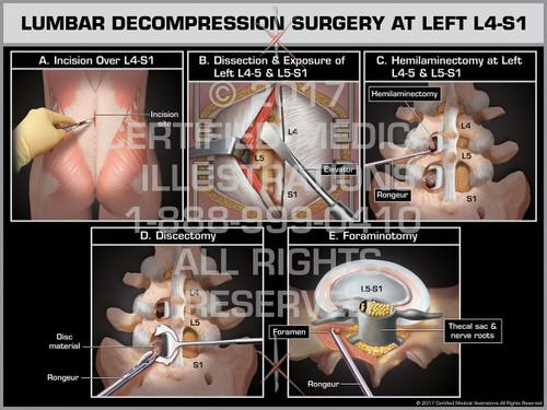 Lumbar Decompression Surgery at Left L4-S1