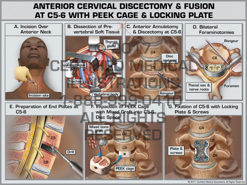 Anterior Cervical Discectomy & Fusion at C5-6 with PEEK Cage and Locking Plate