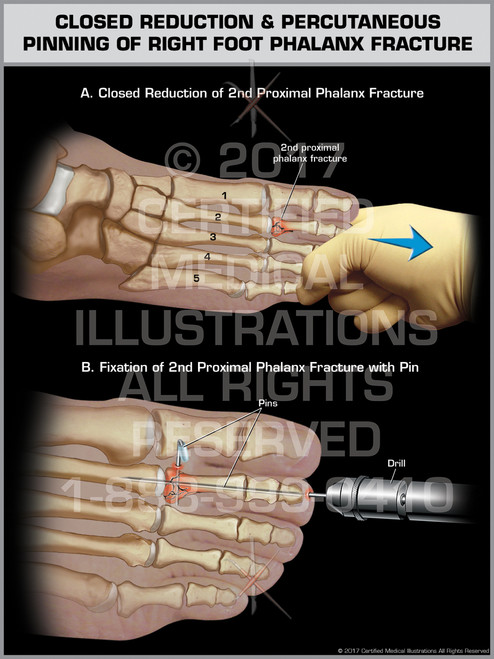 Exhibit of Closed Reduction & Percutaneous Pinning of Right Foot Phalanx Fracture