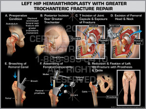 Exhibit of Left Hip Hemiarthroplasty with Greater Trochanteric Fracture Repair- Print Quality Instant Download