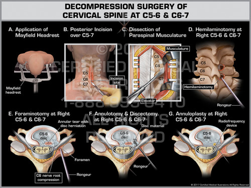 Exhibit of Decompression Surgery of Cervical Spine at C5-6 & C6-7